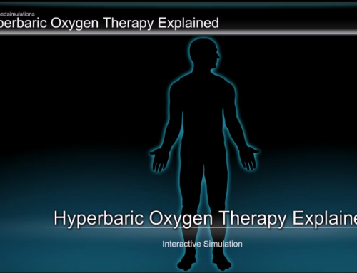 Educational Videos – Patient Education Simulation for Hyperbaric Oxygen Therapy